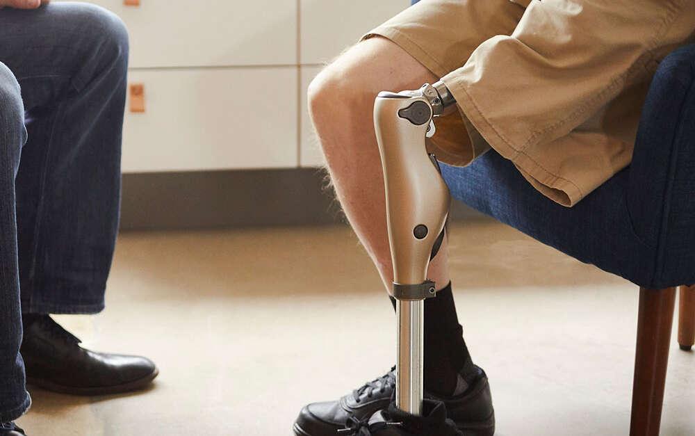 Lower Limb Prostheses